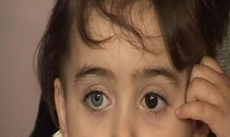 Tovuzlu qızcığazın möcüzəli gözləri…